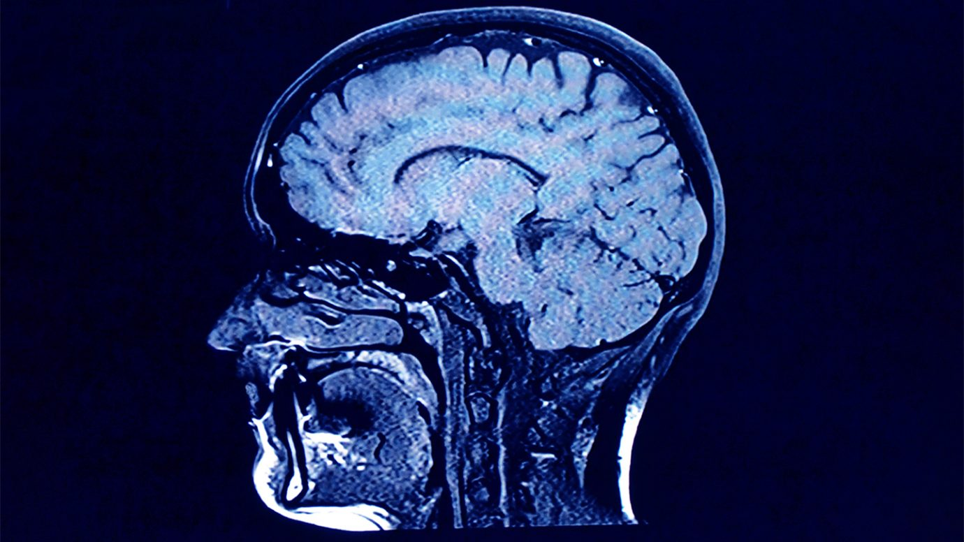 COVID-19 can affect the brain. New clues hint at how