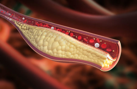 No connection between LDL cholesterol levels and CVD